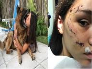 Jovem leva 24 pontos no rosto após mordida de cachorro
