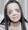 Maraisa mostra hematomas no rosto após cirurgia no nariz